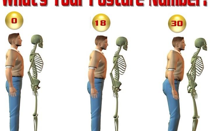 mauvaise posture